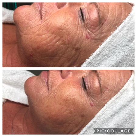 Klinische huidverbetering
